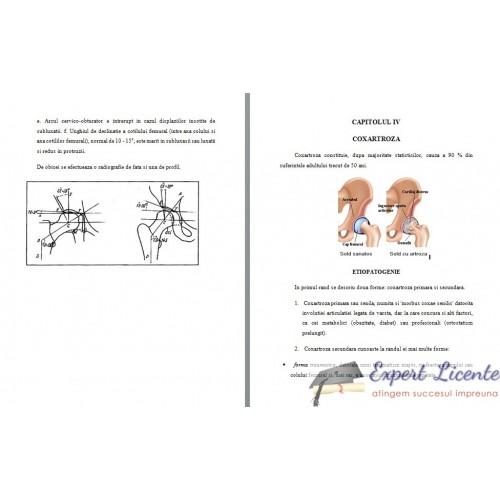 Coxartroza recuperare kinetoterapie lucrare de licenta