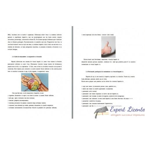 Regimul alimentar recomandat in ciroza hepatica