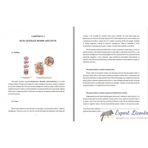 Indometacin unguent osteocondroza cervicala