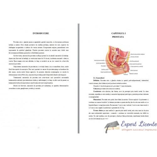 (DOC) LUCRARE DE DIPLOMA INGRIJIREA BOLNAVULUI CU INSUFICIENTA RENALA   Isaura David - prostatita.adonisfarm.ro